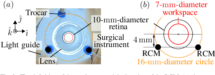 Figure 2 for Autonomous Coordinated Control of the Light Guide for Positioning in Vitreoretinal Surgery