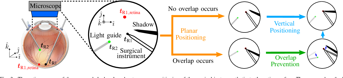 Figure 3 for Autonomous Coordinated Control of the Light Guide for Positioning in Vitreoretinal Surgery