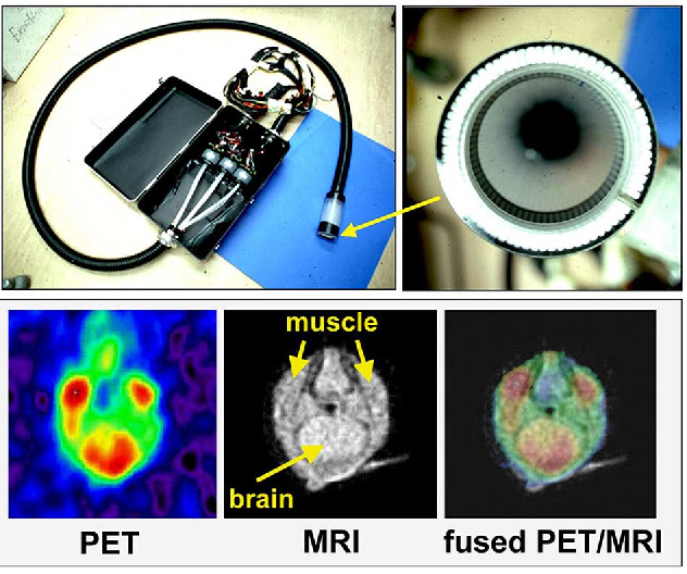 positron emission tomography research papers Articles & issues current issue list of  quantification of liver glucose  metabolism by positron emission tomography: validation study in pigs patricia  iozzo.