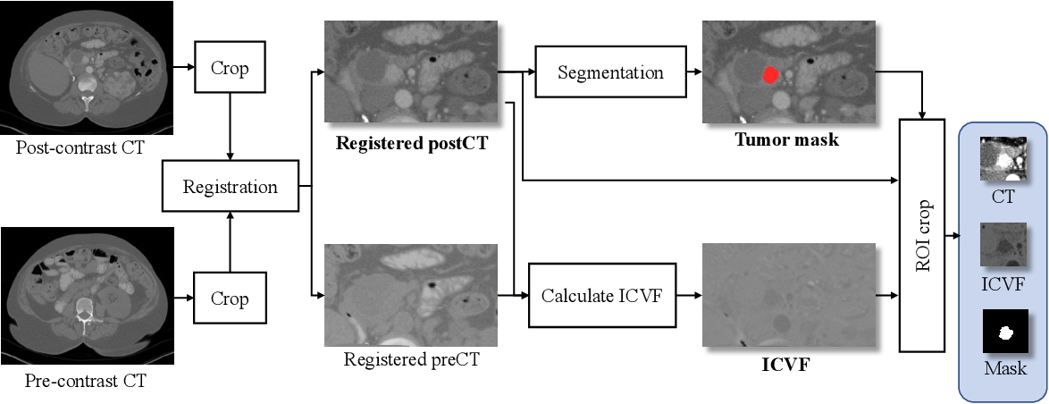 Figure 1 for Spatial-Temporal Convolutional LSTMs for Tumor Growth Prediction by Learning 4D Longitudinal Patient Data