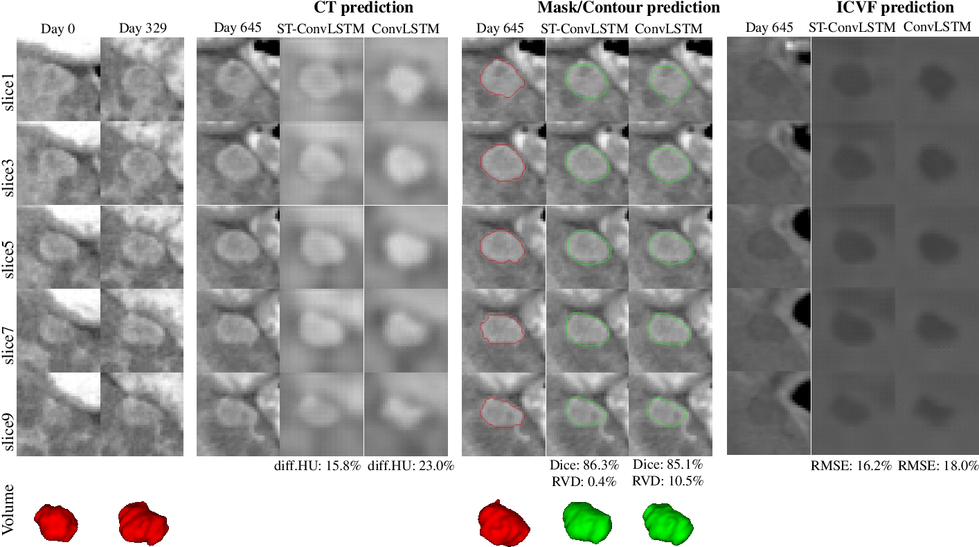 Figure 4 for Spatial-Temporal Convolutional LSTMs for Tumor Growth Prediction by Learning 4D Longitudinal Patient Data