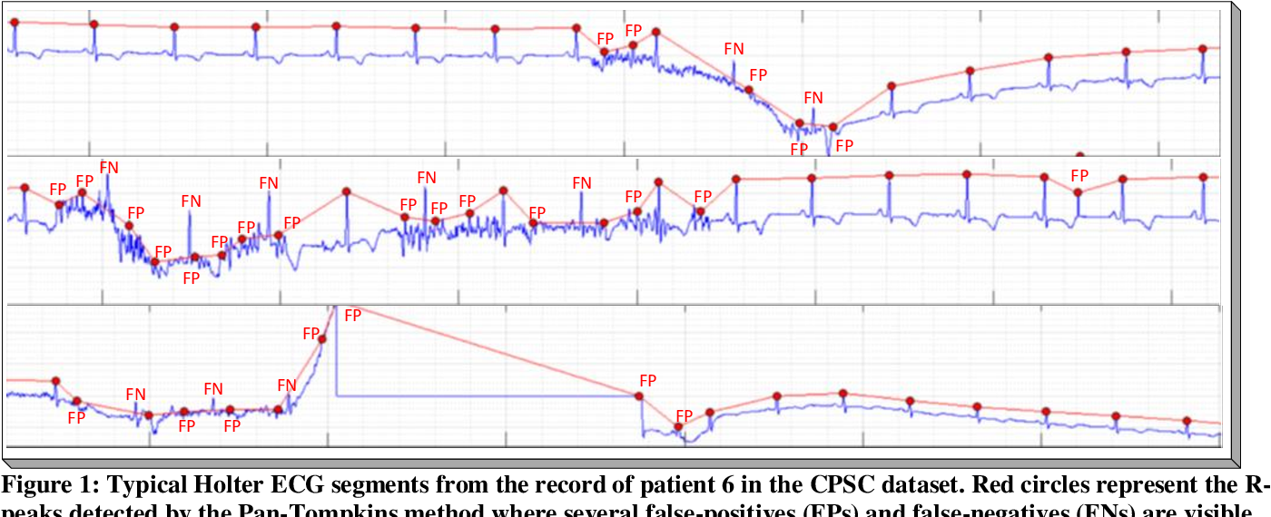 Figure 1 for Robust R-Peak Detection in Low-Quality Holter ECGs using 1D Convolutional Neural Network