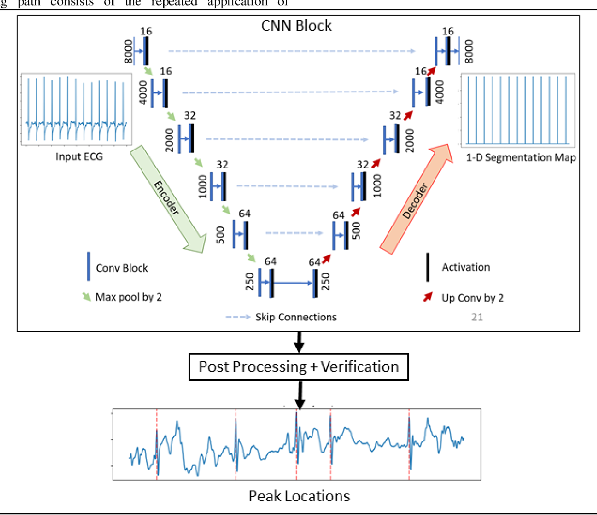 Figure 2 for Robust R-Peak Detection in Low-Quality Holter ECGs using 1D Convolutional Neural Network