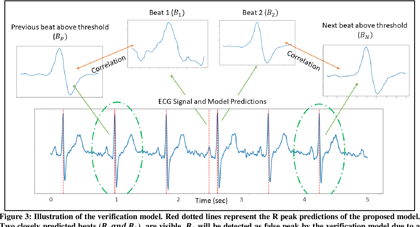 Figure 3 for Robust R-Peak Detection in Low-Quality Holter ECGs using 1D Convolutional Neural Network
