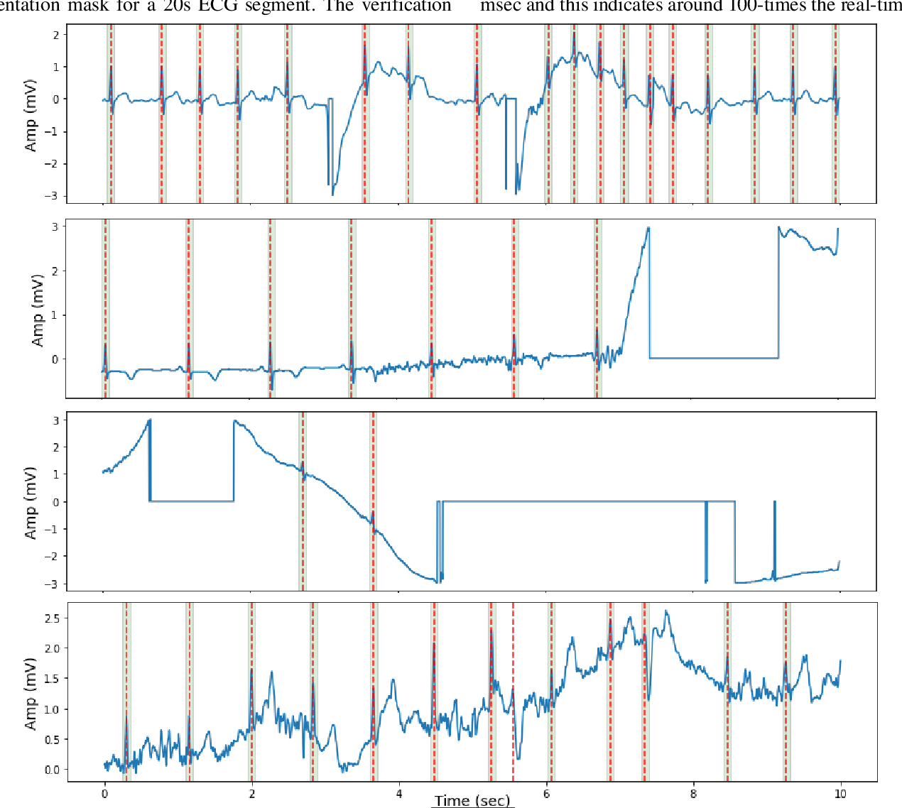 Figure 4 for Robust R-Peak Detection in Low-Quality Holter ECGs using 1D Convolutional Neural Network