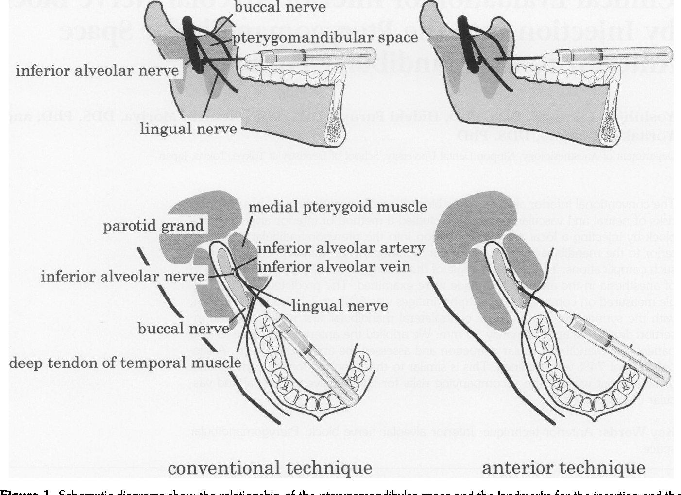Figure 1 from Clinical evaluation of inferior alveolar nerve