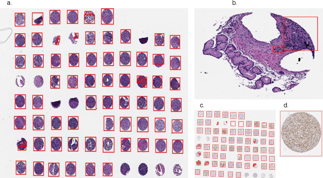 Figure 2 for DLBCL-Morph: Morphological features computed using deep learning for an annotated digital DLBCL image set