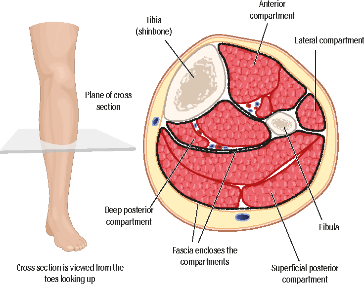 Acute limb compartment syndrome in the lower leg following trauma ...