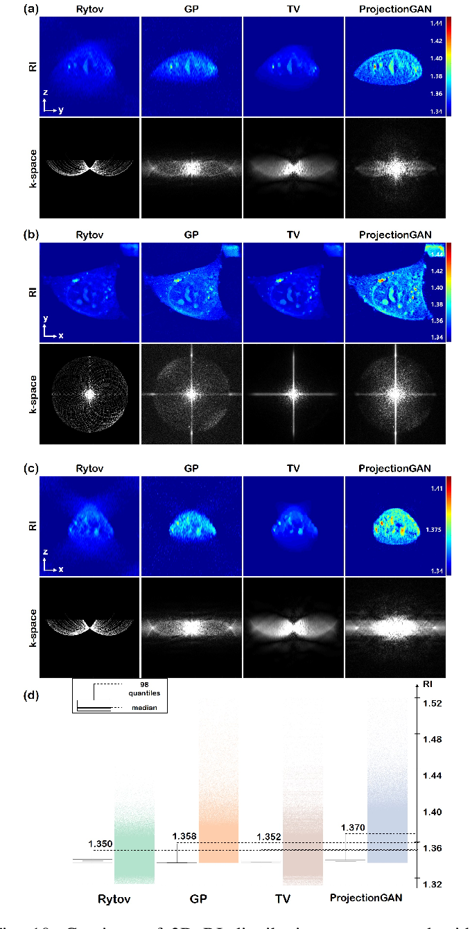 Figure 2 for Unsupervised Missing Cone Deep Learning in Optical Diffraction Tomography