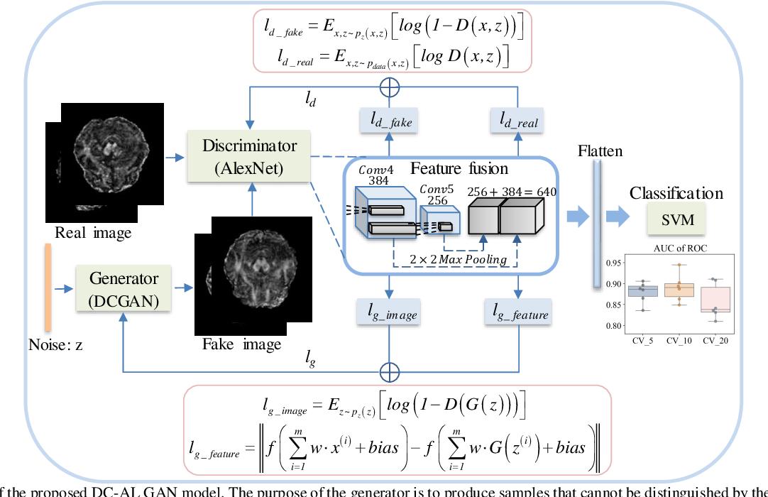 Figure 1 for DC-Al GAN: Pseudoprogression and True Tumor Progression of Glioblastoma multiform Image Classification Based On DCGAN and Alexnet