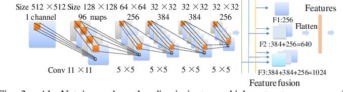 Figure 4 for DC-Al GAN: Pseudoprogression and True Tumor Progression of Glioblastoma multiform Image Classification Based On DCGAN and Alexnet