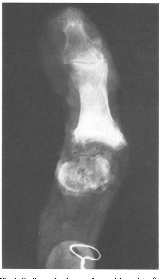 Figure 4 from Hallux sesamoid bones. Anatomical observations with ...