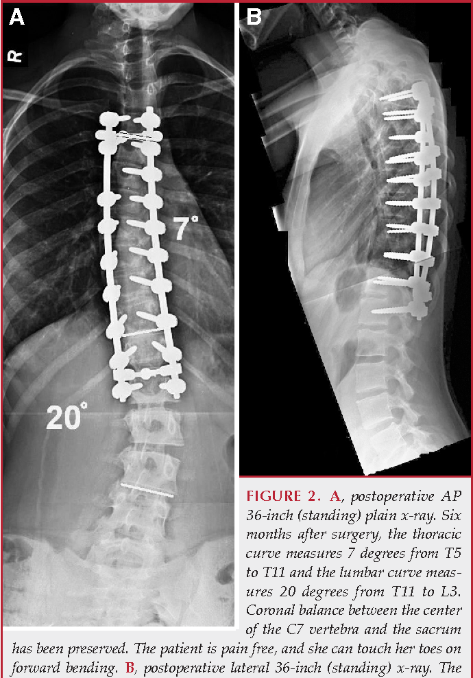 Figure 2 From Decision Making In Adult Deformity Semantic Scholar