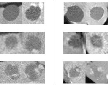 Figure 1 for Synthetic Data Augmentation using GAN for Improved Liver Lesion Classification