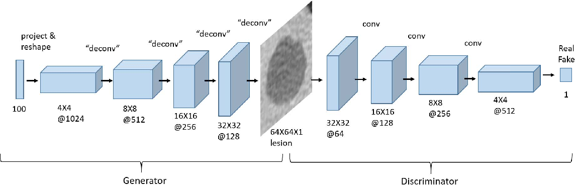 Figure 3 for Synthetic Data Augmentation using GAN for Improved Liver Lesion Classification