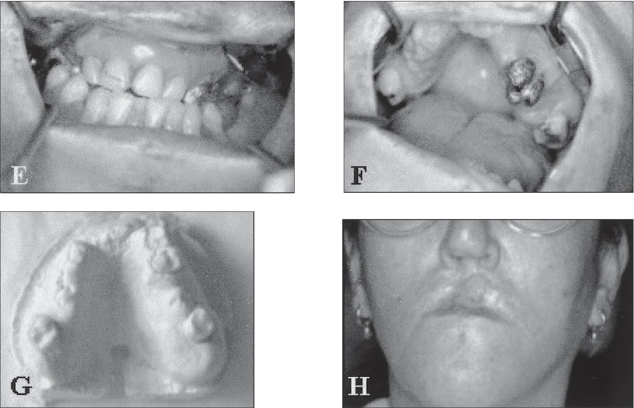 Oral anatomical defects associated with cleft palate and cleft lip ...