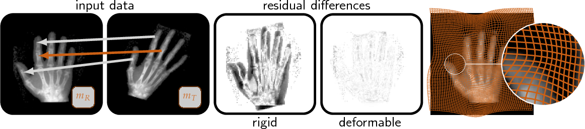 Figure 1 for PDE-constrained optimization in medical image analysis