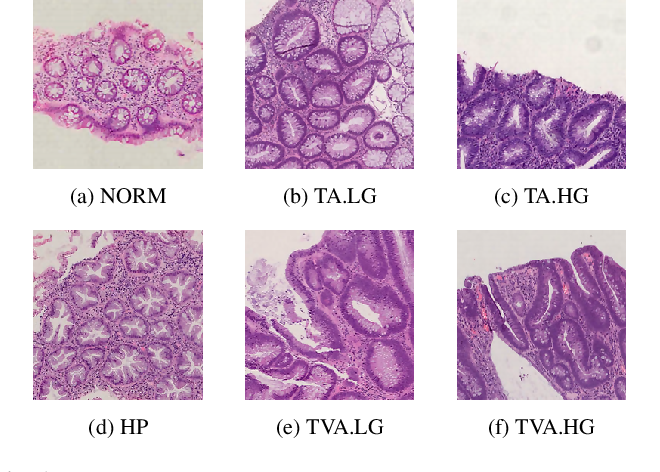 Figure 2 for UniToPatho, a labeled histopathological dataset for colorectal polyps classification and adenoma dysplasia grading