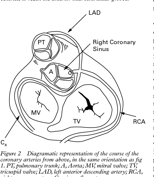 Figure 2 From Coronary Arteries From A Single Coronary Ostium In The