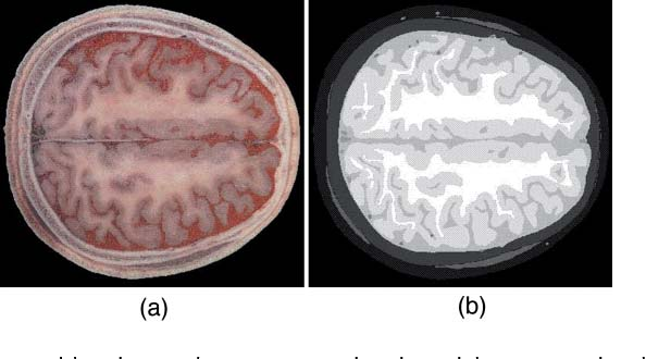 Fig. 1 Visible Chinese human (VCH) head model: (a) Digital color photograph of one head slice in the VCH data set and (b) segmentation of the slice in (a).