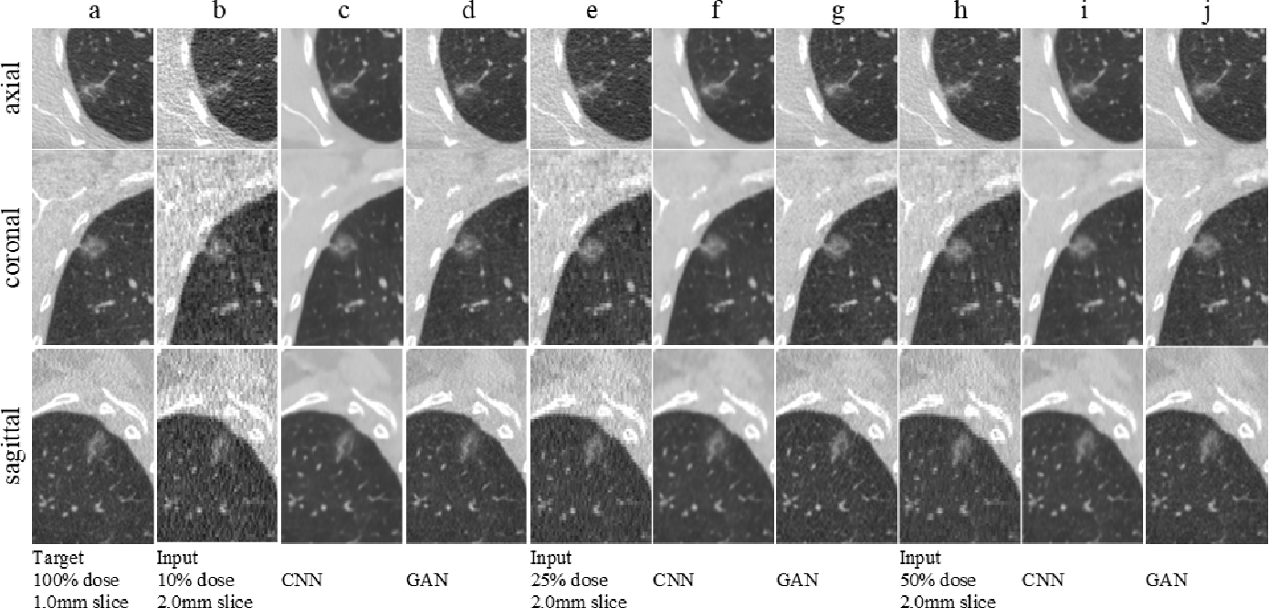 Figure 3 for Using a Generative Adversarial Network for CT Normalization and its Impact on Radiomic Features