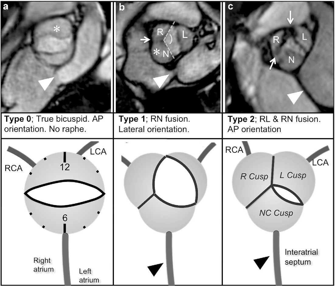 Comprehensive 4-stage categorization of bicuspid aortic valve ...