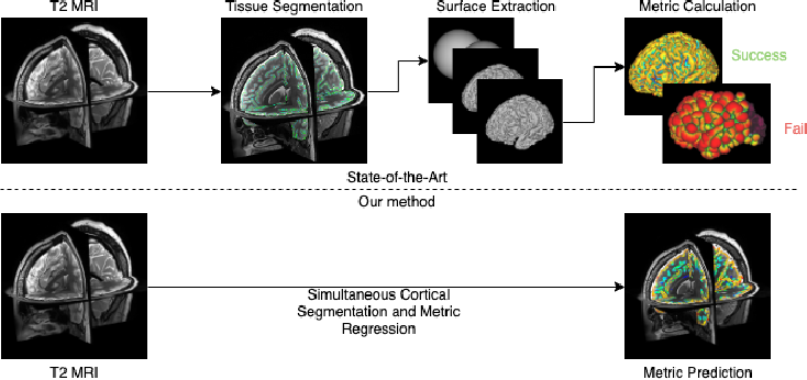 Figure 1 for Surface Agnostic Metrics for Cortical Volume Segmentation and Regression