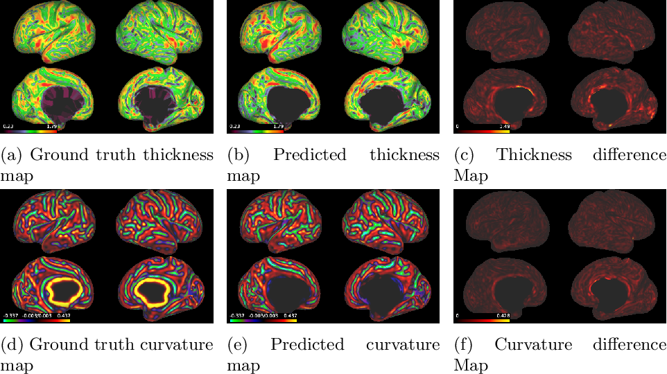 Figure 3 for Surface Agnostic Metrics for Cortical Volume Segmentation and Regression