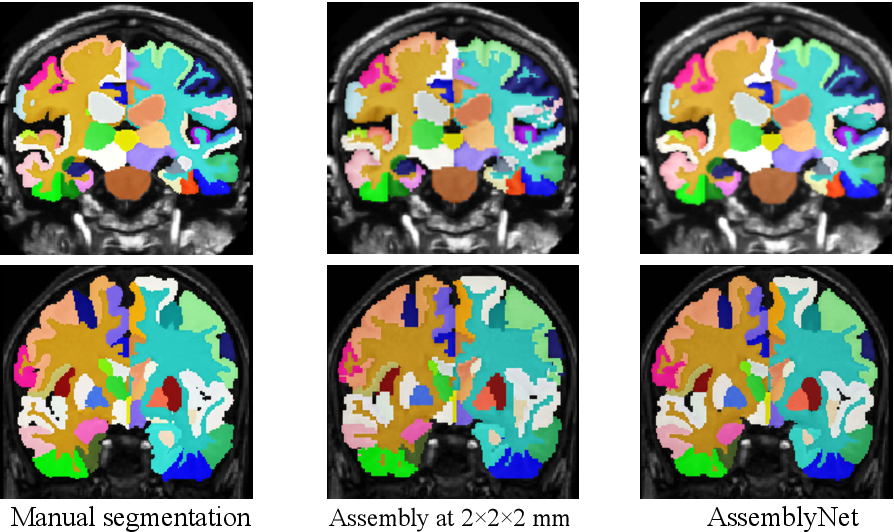Figure 4 for AssemblyNet: A Novel Deep Decision-Making Process for Whole Brain MRI Segmentation