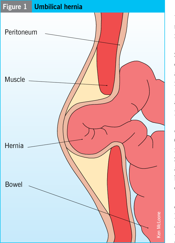 Congenital and acquired umbilical hernias: examination and treatment ...