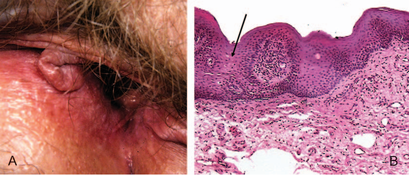 Figure 1 From Hpv Vulvitis Revisited Frequent And Persistent