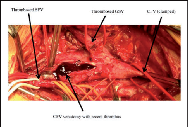Case Report Limb Threatening Femoral Vein Thrombosis In A Healthy