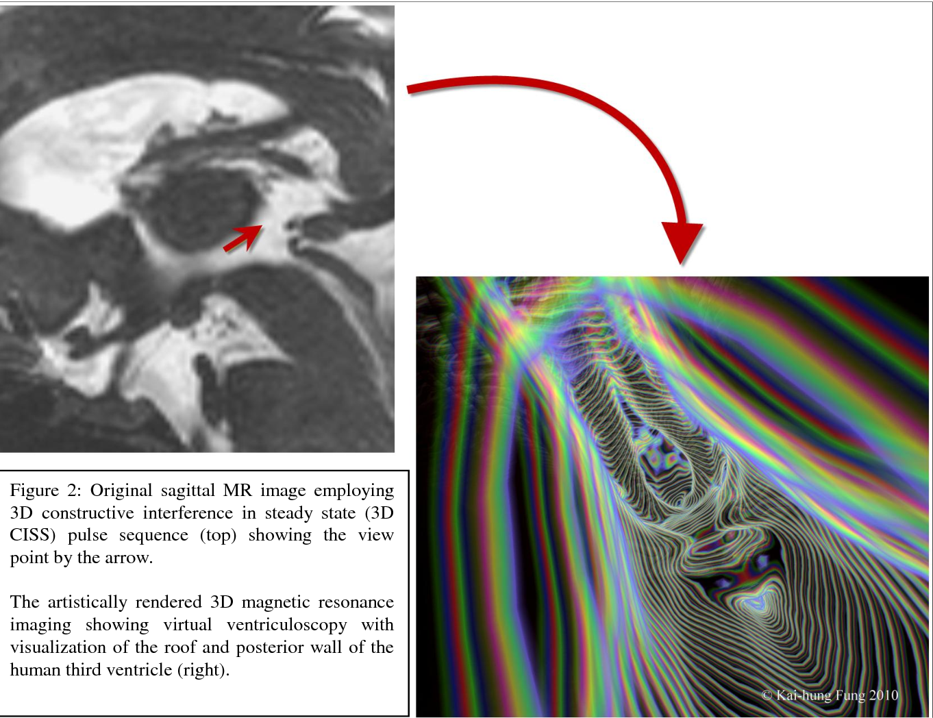 Figure 2: Original sagittal MR image employing 3D constructive interference in steady state (3D CISS) pulse sequence (top) showing the view point by the arrow.
