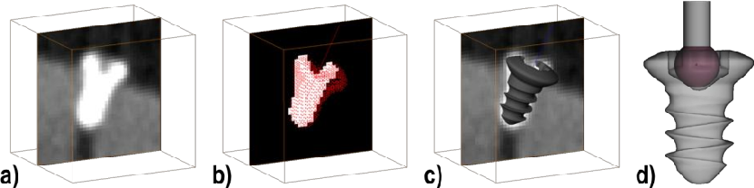 Figure 3: Fiducial detection workflow in the image: cropped subvolume (a); Extracted features with binary subvolume (b); and co-registered fiducial model and image (c). Ball-in-cone representation (d).