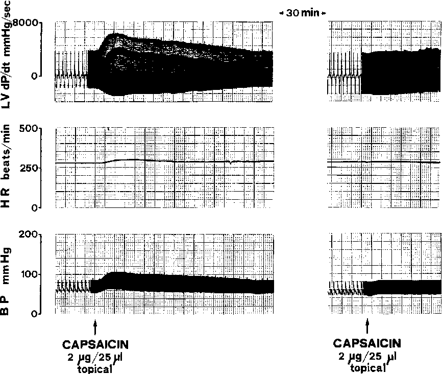 Fig. 1. Typical tracings showing the cardiovascular effects (LVdP/dt, left ventricular dP/dt; HR, heart rate; BP, blood pressure) after topical application of capsaicin (2 gg in 25 gl) on the bladder dome of a urethane anesthetized spinal (C2-C3) rat. Note that a second application, 30 min later, is ineffective