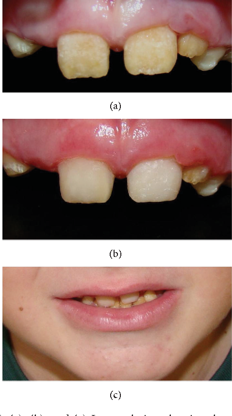 Figure 6: (a), (b), and (c)-Intraoral view showing the restorative treatment and esthetic appearance of the smile.