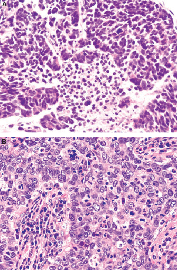 Figure 3 From Endocrine Tumours Of The Pancreas Semantic Scholar
