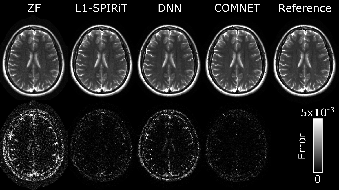 Figure 4 for A Few-Shot Learning Approach for Accelerated MRI via Fusion of Data-Driven and Subject-Driven Priors
