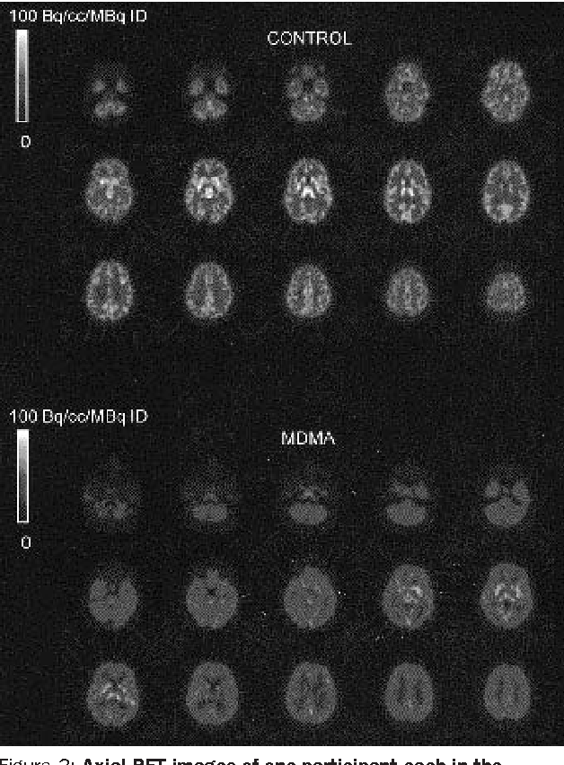 Figure 2: Axial PET images of one participant each in the control group and MDMA group showing distribution of specific [11C]McN-5652 binding PET images were acquired 55–95