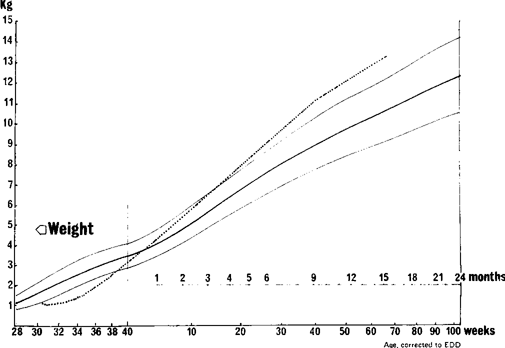 Figure 4 From A Growth Chart For Premature And Other Infants