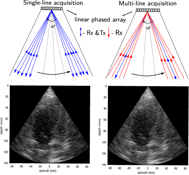Figure 1 for High frame-rate cardiac ultrasound imaging with deep learning