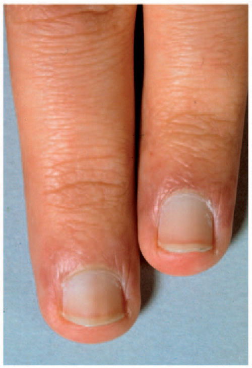 Involvement of scalp and nails in lupus erythematosus. - Semantic ...