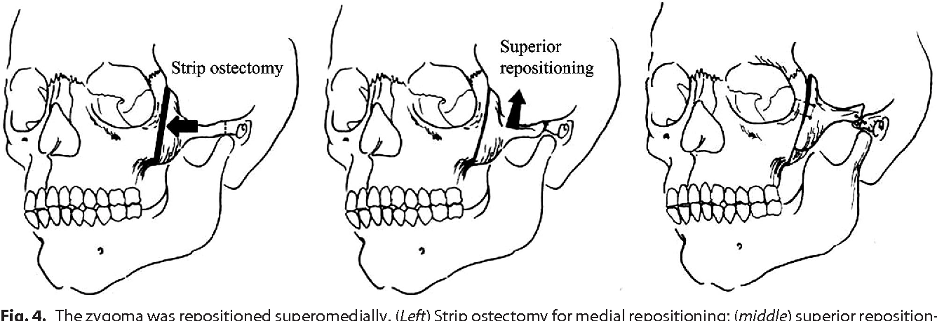Figure 4 from COSMETIC Face Lift with Reposition ...