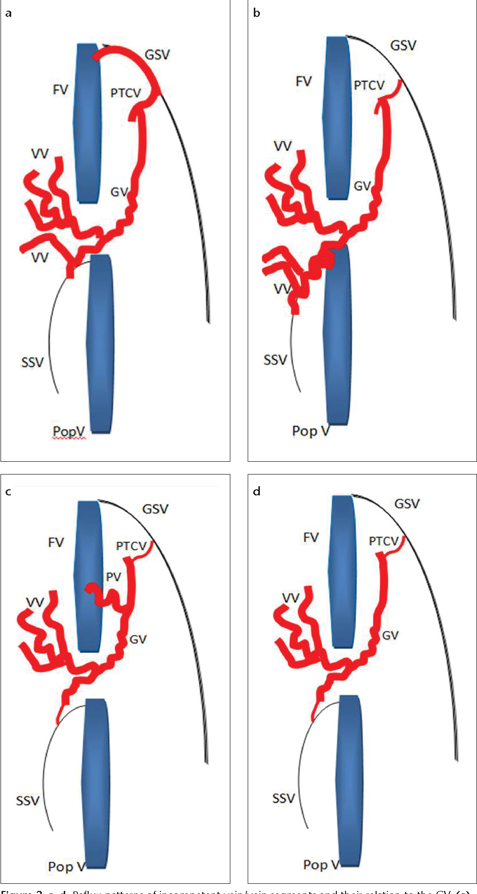Targeted endovenous treatment of Giacomini vein insufficiency ...