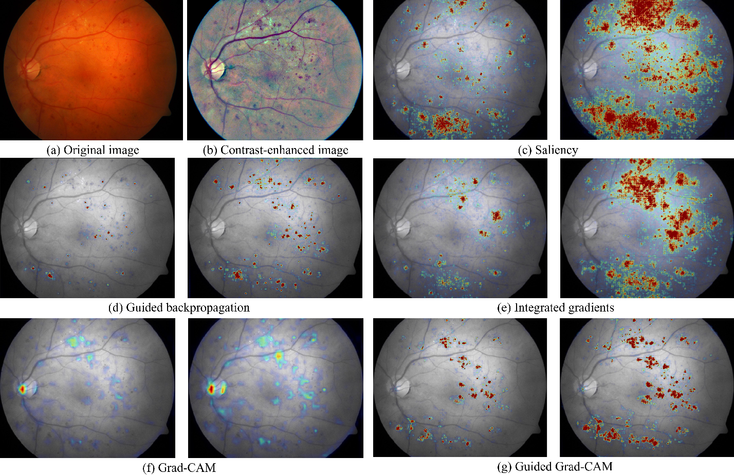Figure 2 for Iterative augmentation of visual evidence for weakly-supervised lesion localization in deep interpretability frameworks