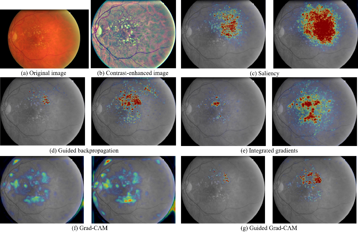 Figure 4 for Iterative augmentation of visual evidence for weakly-supervised lesion localization in deep interpretability frameworks