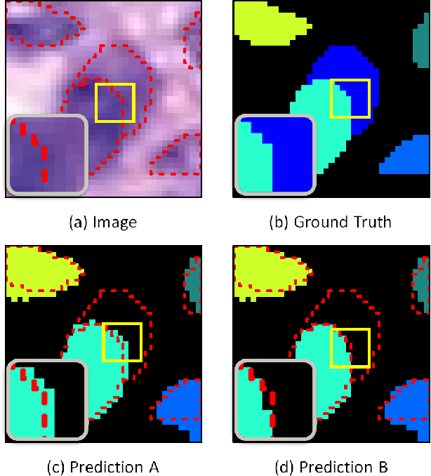 Figure 4 for XY Network for Nuclear Segmentation in Multi-Tissue Histology Images