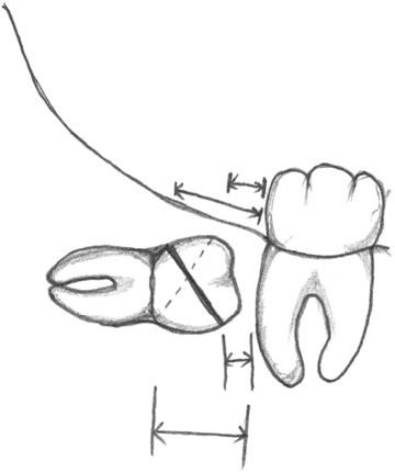 General Technique Of Third Molar Removal