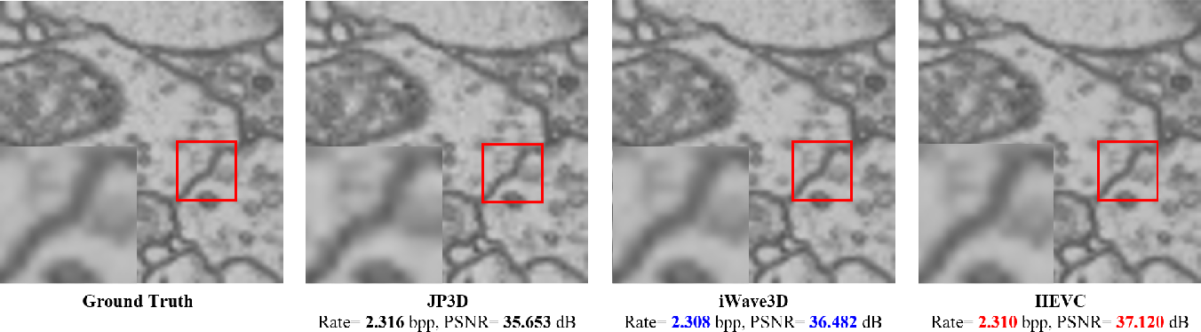 Figure 4 for iWave3D: End-to-end Brain Image Compression with Trainable 3-D Wavelet Transform