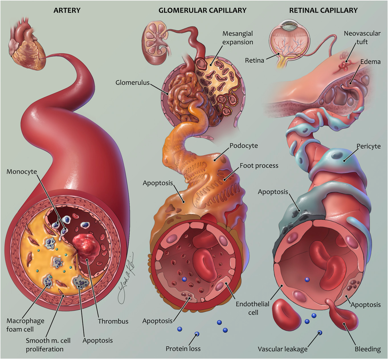 Vascular complications of diabetes: mechanisms of injury and ...